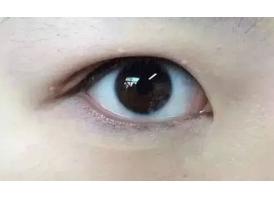什么是肿泡眼?美莱科普!