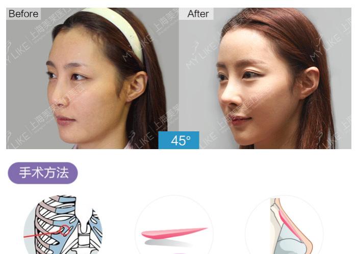 【上海做自体组织隆鼻】上海做全肋软骨隆鼻适用人群是哪些