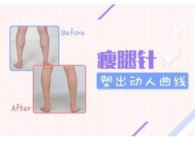 【美莱注射瘦腿针】上海美莱整形打瘦腿针的价格贵不