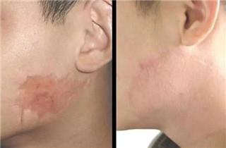 上海激光去疤痕优势是什么?