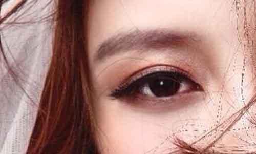 """上海割双眼后的疤痕多久会""""消失""""?"""