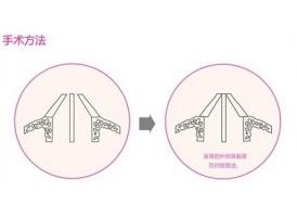 上海做歪鼻矫正手术安全吗,歪鼻整形的安全性怎么样