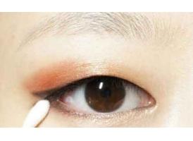 单眼皮割双眼皮方法有哪些?美莱科普!