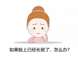 上海激光祛斑要做几次?
