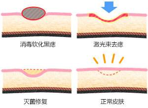 上海点阵激光祛痘的效果好不好