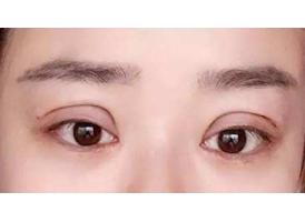 上海双眼皮手术需要多少钱?