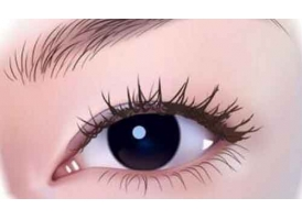 上海双眼皮修复佳时间?