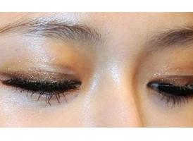 上海埋线双眼皮适应症是什么?