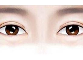 上海双眼皮修复哪个医院好?