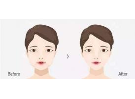上海做祛颊脂垫瘦脸能让脸凹陷吗?