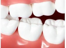 美莱做牙齿修复四种方式,牙齿缺了别着急!