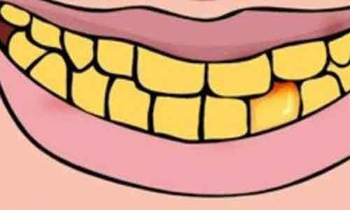 杭州美莱口腔中心牙齿美白过程