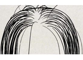 上海种植头发过程分为几个步骤?