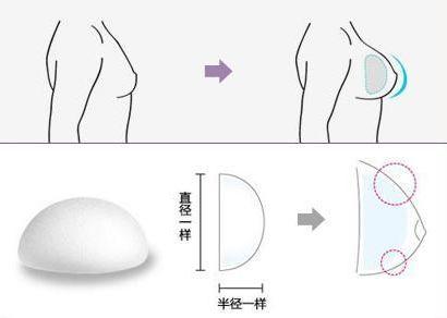 上海做隆胸术,假体隆胸和脂肪隆胸哪个好?