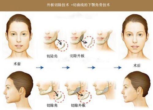 上海整形医院做改脸型手术一般多少钱
