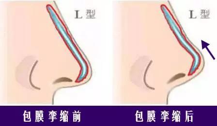 上海隆鼻假体都分几种?