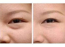 上海做了眼部吸脂会有什么副作用吗?