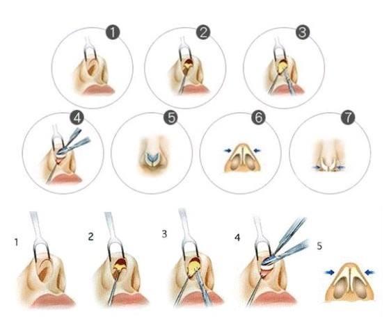 膨体与硅胶假体隆鼻材料的优缺点分别是什么