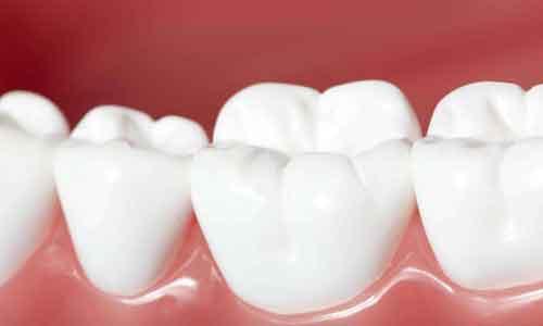 上海牙齿矫正要拍片吗?