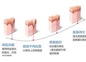 上海换肤能祛痘吗?