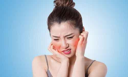 上海敏感肌的表现有哪些?