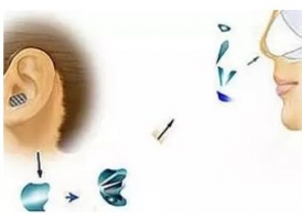 隆鼻失败后硅胶假体外露怎么修复?