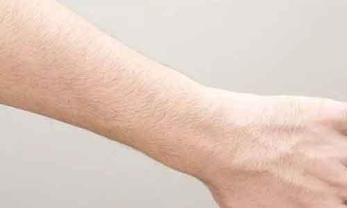 上海激光脱手臂毛会不会留疤?