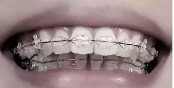 上海牙齿矫正步骤分几步?