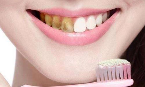 上海洗牙的作用是什么?