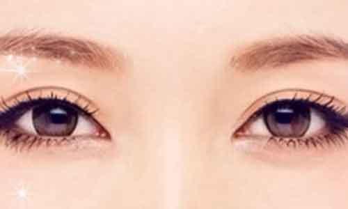 上海双眼皮的类型有哪些?