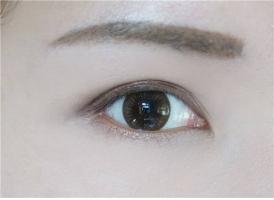 上海做个双眼皮大约要花多少钱