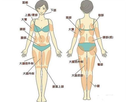 做了腹部吸脂后除皱凹凸不平,怎么修复?