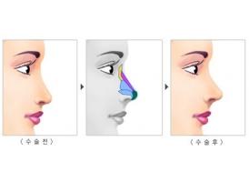 上海隆鼻:耳软骨垫鼻尖和鼻中隔垫鼻尖有啥区别