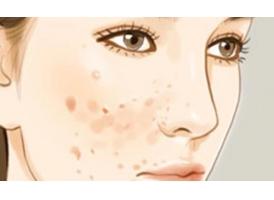 有痘痘该怎么办?