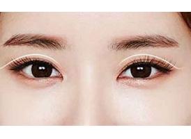 韩式三点双眼皮手术多少钱?