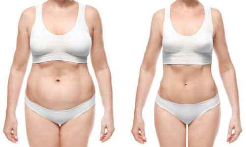 如何减掉肚子上的脂肪?美莱吸脂手术可以减!