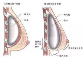 假体隆胸与自体脂肪移植丰胸哪种好,区别在哪