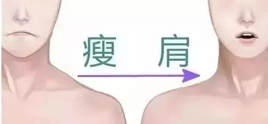 上海瘦肩针一般打多少单位?