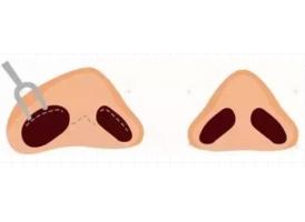 上海鼻头缩小手术几天消肿?