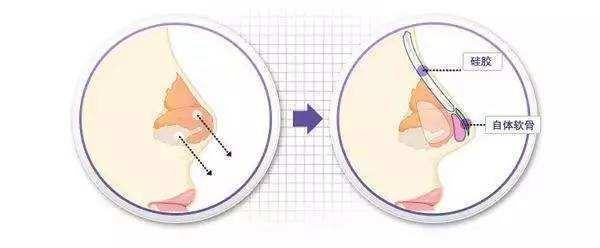 隆鼻假体取出后可以重新放新假体吗