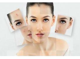 美莱皮肤邱阳科普:夏季油性皮肤怎样护肤