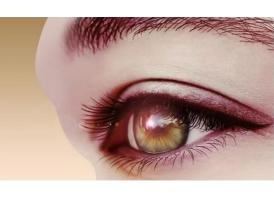 双眼皮修复手术感冒的时候可以做吗?