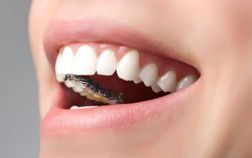 上海做牙齿矫正暴牙怎么矫正