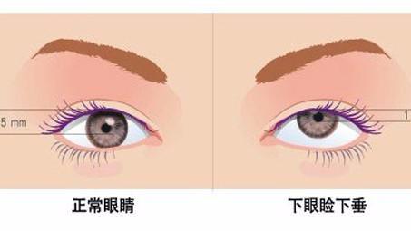 眼皮下垂怎么恢复