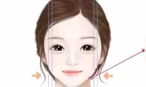 瘦脸针的效果怎么样?美莱