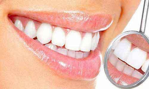 上海烤瓷牙有缝隙是什么原因造成的?