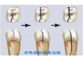 上海口腔医院牙裂怎么修复