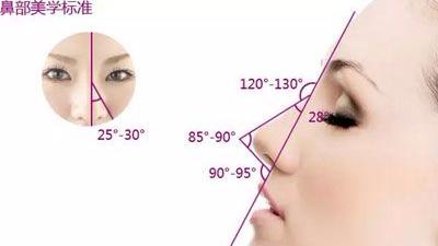 鼻子修复多少钱