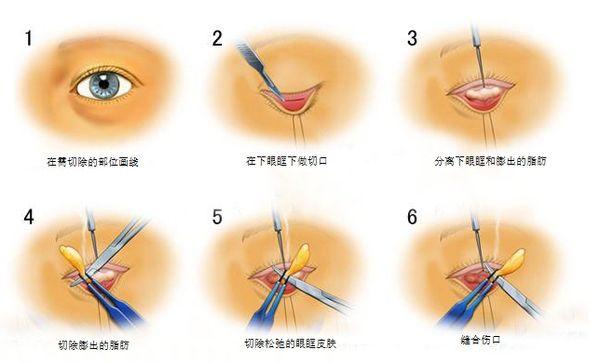 去眼袋手术效果上海美莱好不好