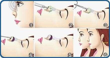 玻尿酸隆鼻后多久可以碰鼻子